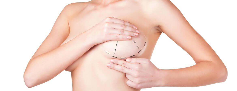 senos modelo