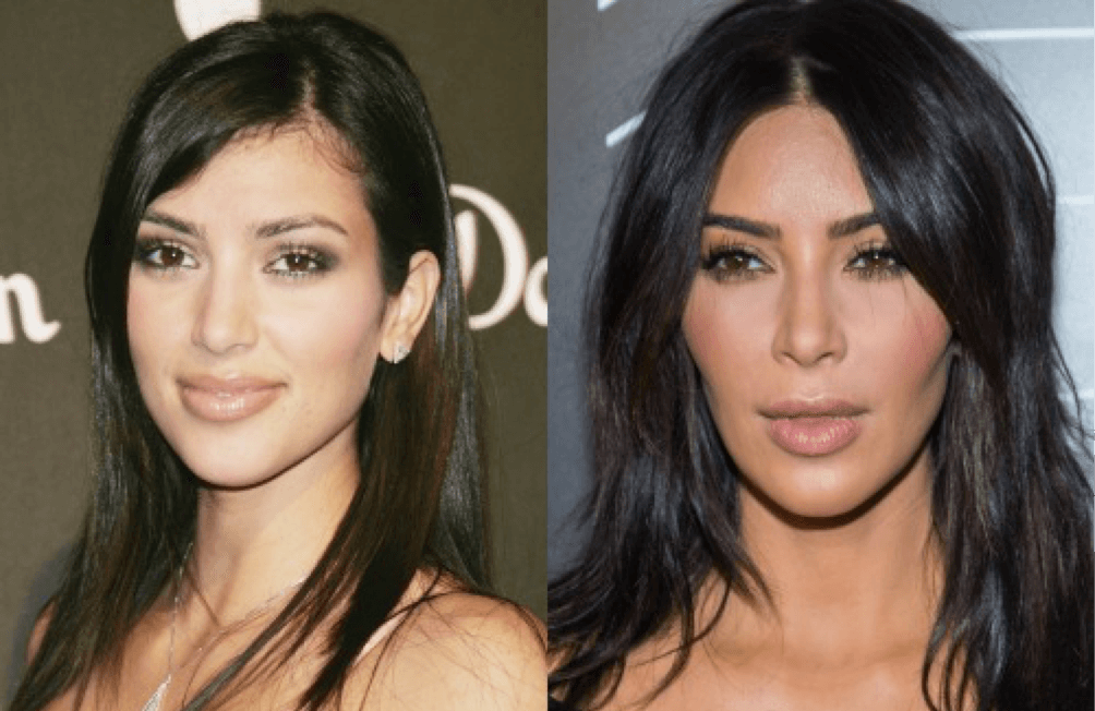 #6- Bichectomía Antes y Después: Kim Kardashian