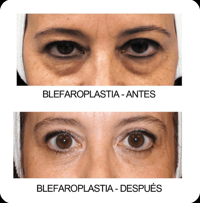Blefaroplastia Láser - Cirugía de Parpados Lima Perú - Cirugía ...