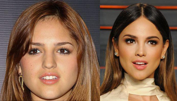 #4- Bichectomía Antes y Después: Eiza González