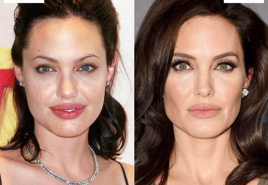 Bichectomía Antes y Después: Angelina Jolie