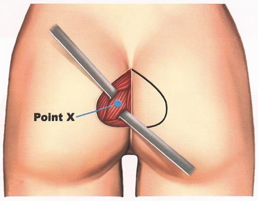 corte-para-implante-gluteos