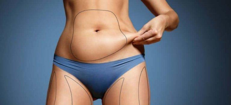 ¿Qué es una Mini Abdominoplastia?