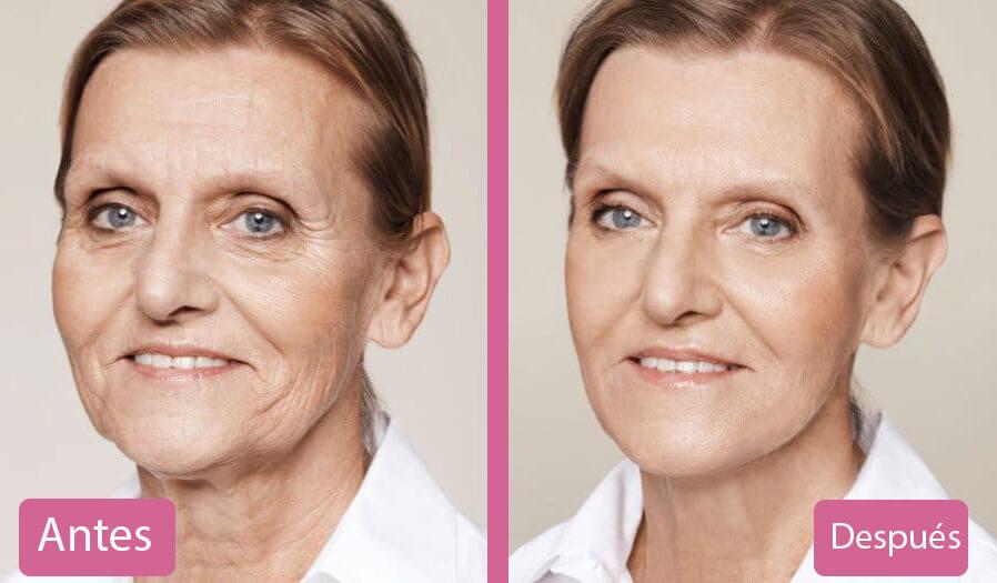 Rejuvenecimiento Facial Antes y Después