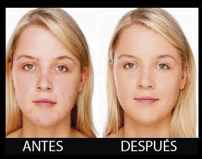 Fototerapia Persona Joven