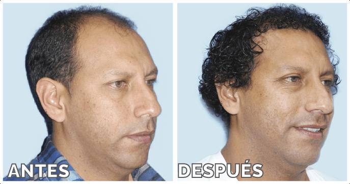 3305d60dfd2e2 Candidatos ideales para un trasplante de pelo o implante capilar