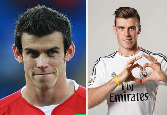 2.Otoplastia Antes y Después: Gareth Bale