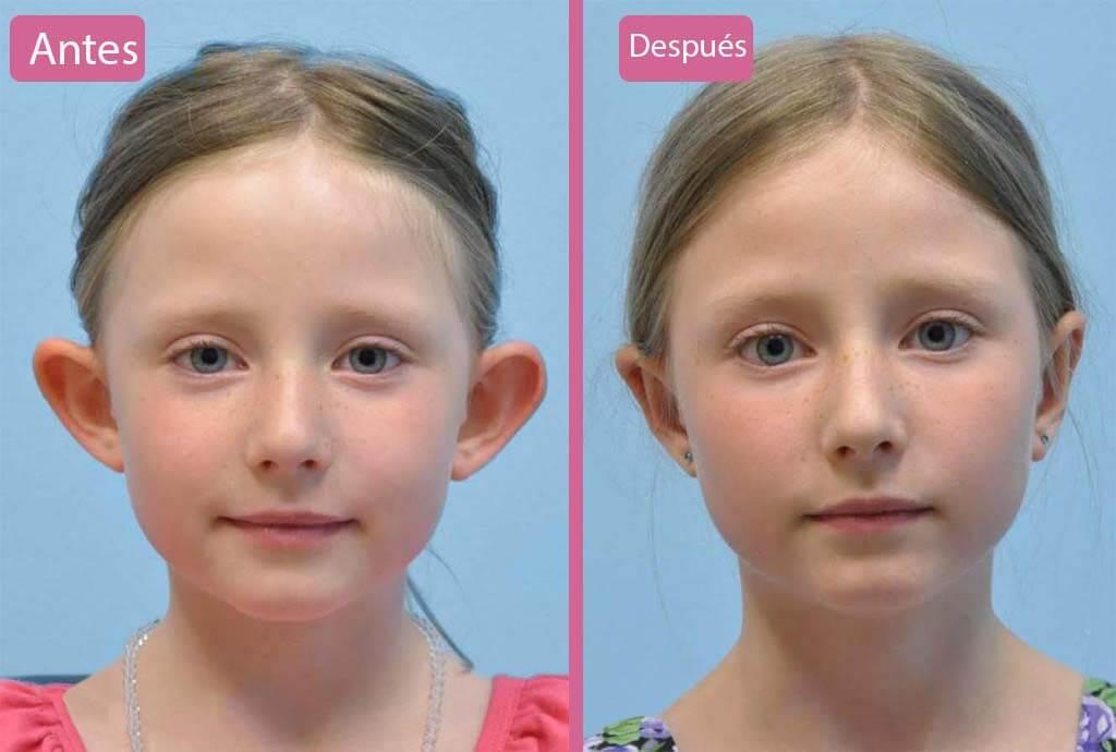 Otoplastia Infantil Antes y Después