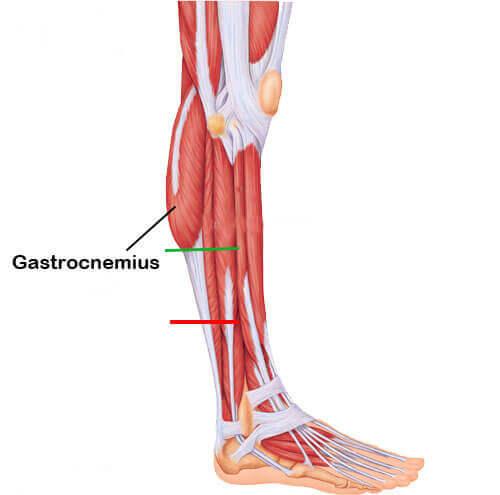 Pantorrilla - Gastrocnemius