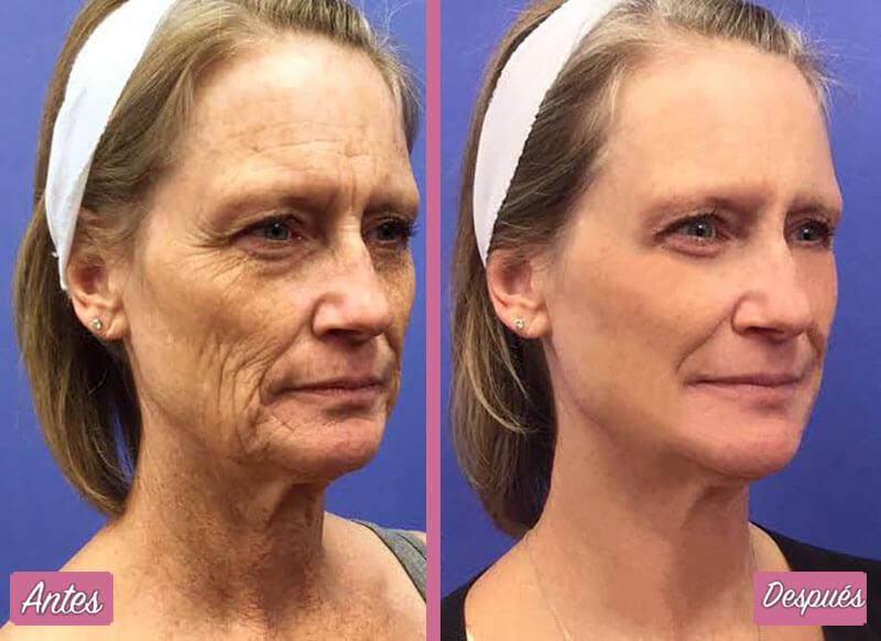 Resultados del Rejuvenecimiento Facial Láser