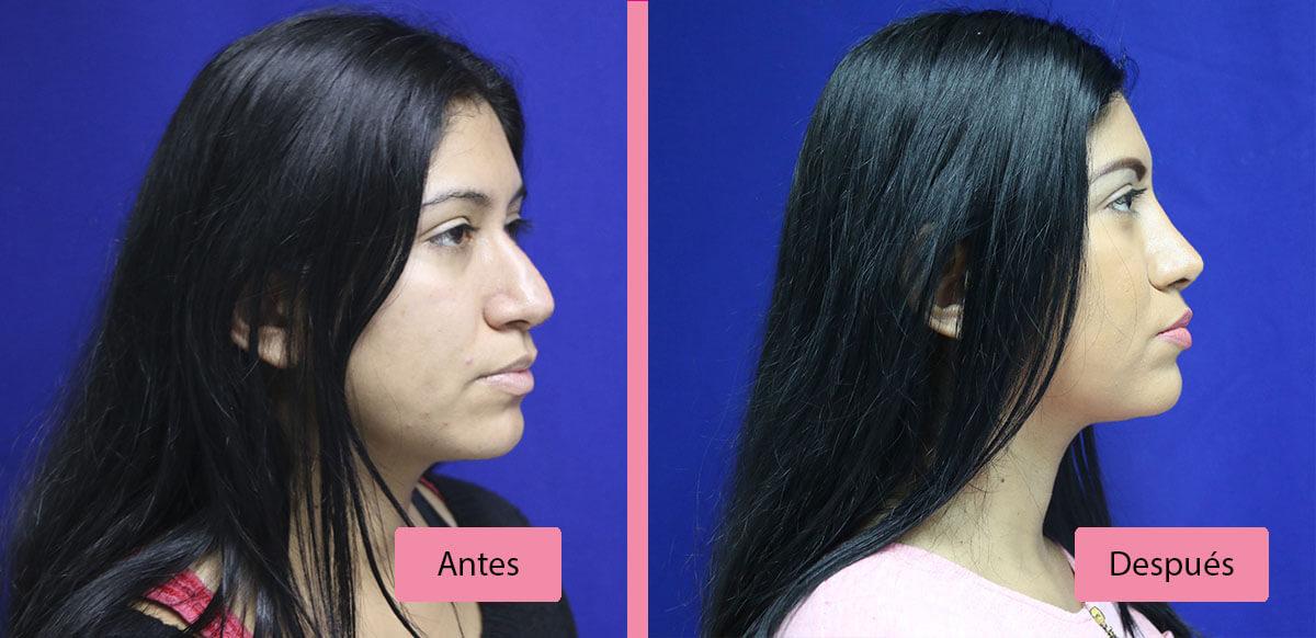 Cirugía de Nariz Antes y Después